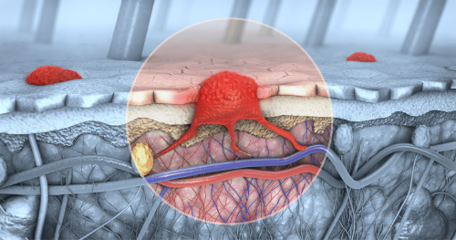 3d illustration of a cross-section of skin with melanoma that enters the bloodstream and lymphatic tract